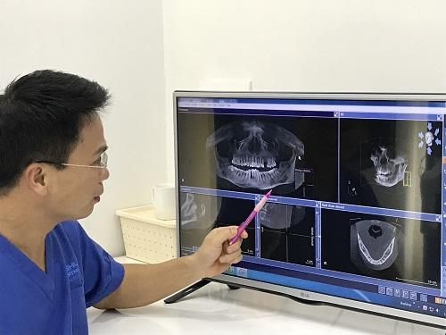 Hỏi ý kiến chuyên gia: Có nên niềng răng hay không?