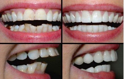 Cách bọc răng sứ cho răng hô hiệu quả nhất tại Nha Khoa Lê Hưng