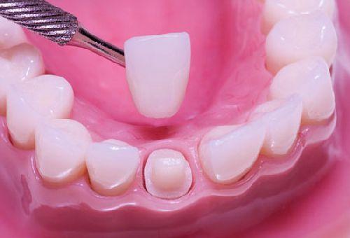 Bọc răng sứ ở đâu hiệu quả lâu dài tại Hà Nội?