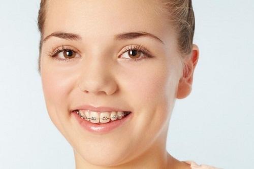 đeo niềng răng mất bao lâu thì hiệu quả