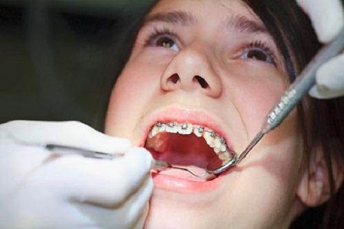 đeo niềng răng bao nhiêu lâu thì hiệu quả