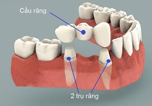 Làm cầu răng có tốt không và sử dụng được bao lâu?