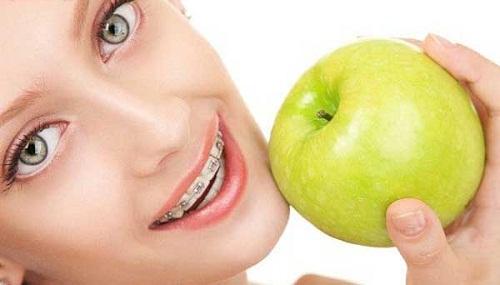 Niềng răng có tác dụng gì và nên thực hiện ở đâu tốt nhất?