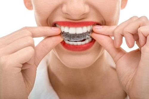 Niềng răng có tốt không và cần lưu ý những điều gì?