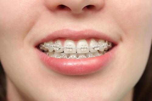 Niềng răng để làm gì và cách thực hiện như thế nào?