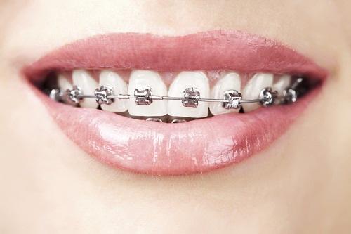 Nên niềng răng hay bọc sứ chỉnh hình nha khoa thẩm mỹ tốt hơn?