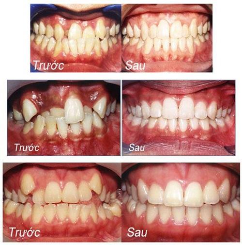 Niềng răng khểnh mất bao lâu để có một hàm răng đẹp?