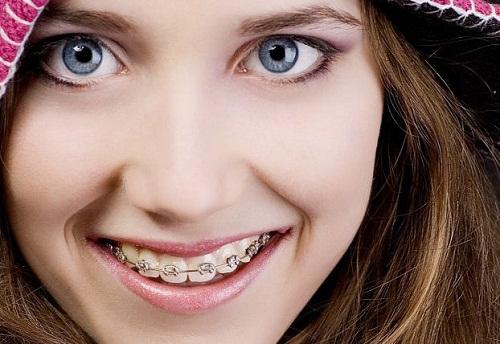 Niềng răng nhanh nhất mất thời gian bao lâu thì hiệu quả?