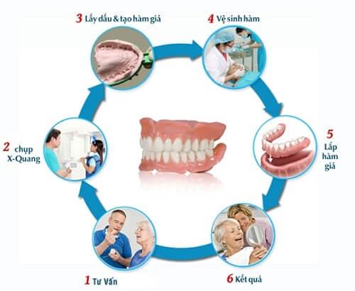 Tìm hiểu về phương pháp lắp hàm răng giả thẩm mỹ