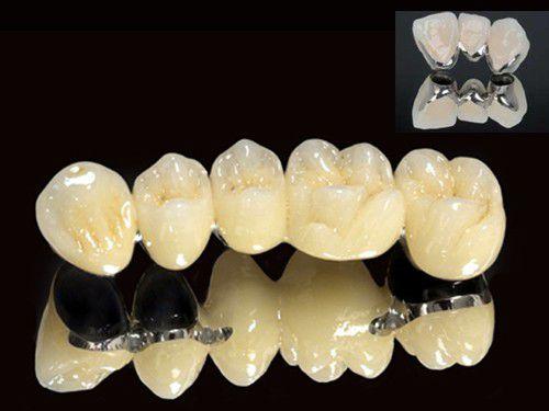 Răng sứ kim loại có tốt không và nên chọn loại nào?