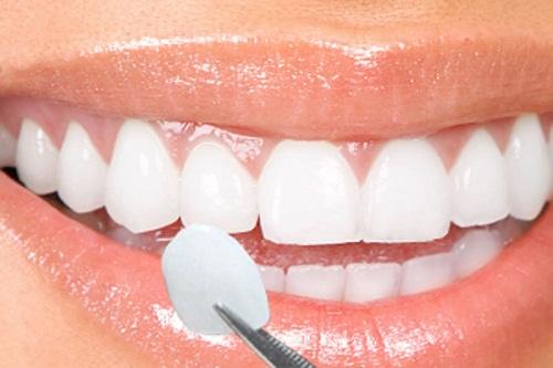 Bọc răng sứ chữa hô có giải quyết được hiệu quả không?