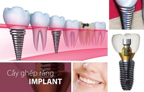 Cấy Implant ở đâu tốt đảm bảo chất lượng và giá thành phải chăng?