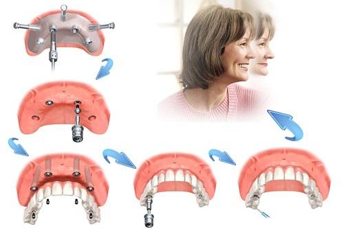 Cấy ghép Implant được sử dụng cho những trường hợp nào?