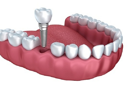 Cấy ghép răng Implant có đau không và thực hiện như thế nào?