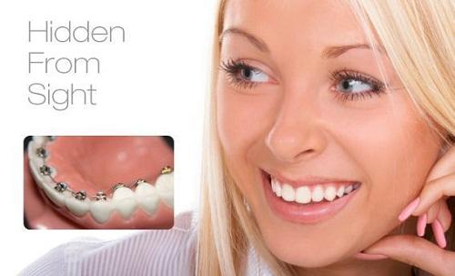 Chi phí niềng răng mắc cài mặt trong bao nhiêu là hợp lý?