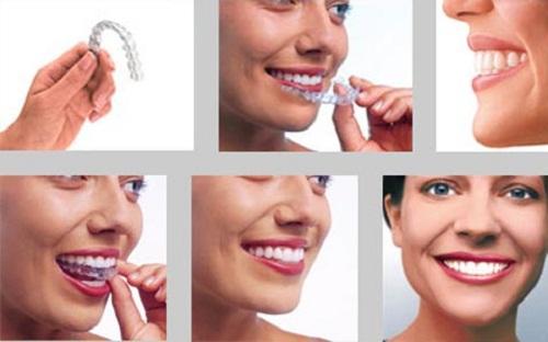 Chỉnh răng không cần niềng có hiệu quả hay không?