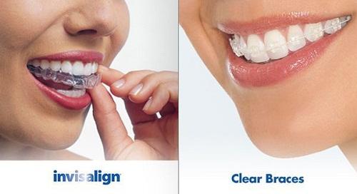 Chỉnh nha không mắc cài kỹ thuật niềng răng tiên tiến nhất hiện nay