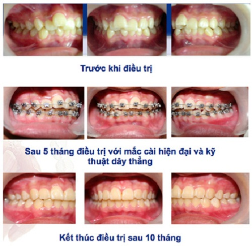 Chỉnh răng mọc lệch bao nhiêu tiền và phương pháp nào tốt nhất?