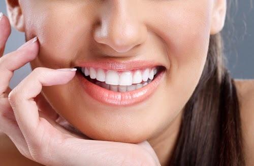 Đắp răng sứ là gì và được thực hiện như thế nào?