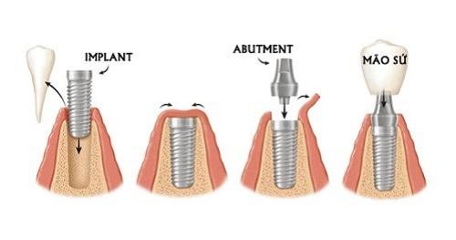 Ghép răng Implant và những lưu ý không thể bỏ qua