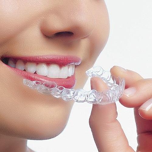Giá niềng răng invisalign bao nhiêu tại Nha khoa Lê Hưng?