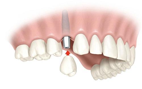Tìm hiểu về kỹ thuật cấy ghép Implant trong nha khoa hiện đại