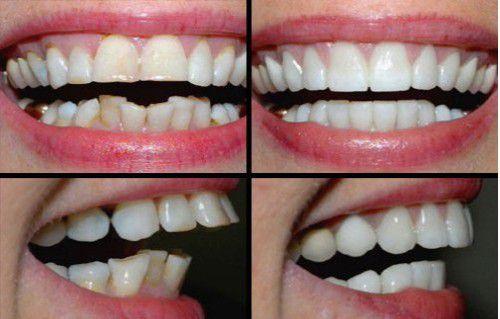 Nắn chỉnh răng vẩu bằng cách nào là hiệu quả nhất?