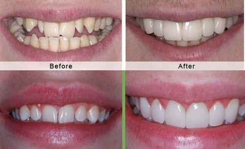 Nên niềng răng hay bọc sứ trong các trường hợp răng khấp khểnh?