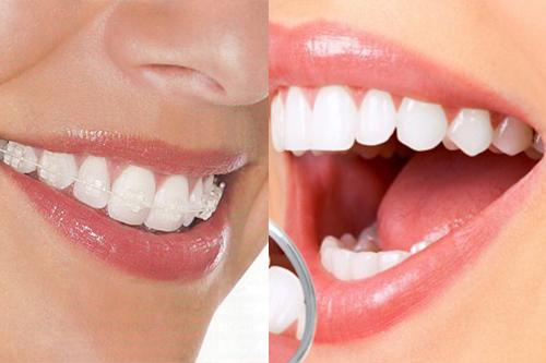 Kết quả hình ảnh cho Tình trạng răng khấp khểnh tùy vào cấp độ mà còn ảnh hưởng