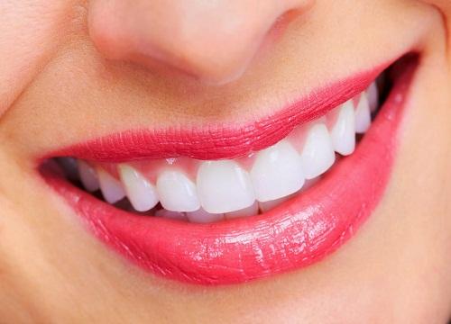 Những điều cần lưu ý khi đắp răng sứ để đảm bảo chất lượng