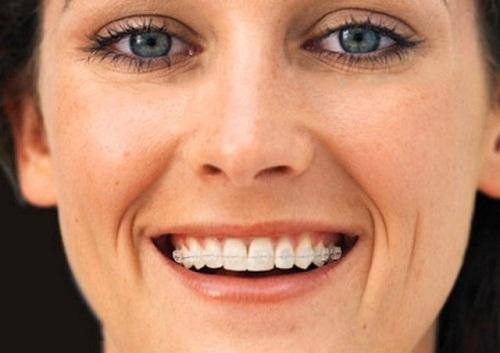 Những ưu điểm của niềng răng bằng sứ trong nha khoa thẩm mỹ