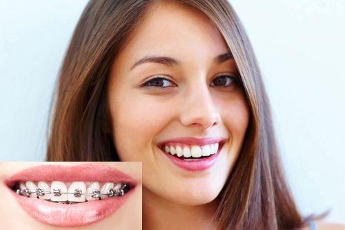 Niềng răng giá bao nhiêu tiền thì tốt nhất tại Nha Khoa Lê Hưng