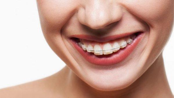 Niềng răng hô giá bao nhiêu và thực hiện thế nào hiệu quả?