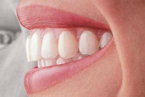 Niềng răng không mắc cài tại Hà Nội ở đâu uy tín nhất