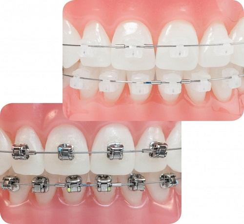 Niềng răng mắc cài sứ giá bao nhiêu là tốt nhất hiện nay