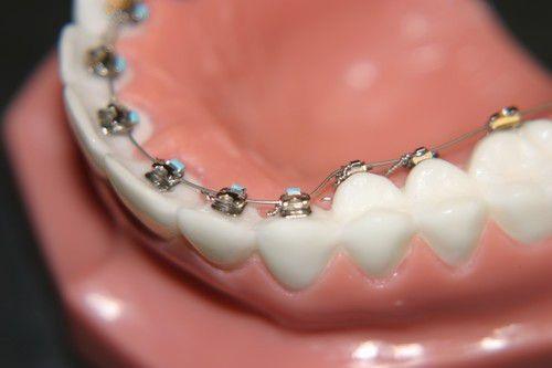 Niềng răng bên trong có những ưu nhược điểm gì?