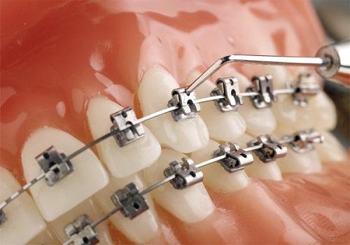 Niềng răng nhanh nhất phải mất bao lâu mới hoàn thiện?