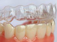 Niềng răng trong suốt bao nhiêu tiền tại Nha Khoa Lê Hưng?