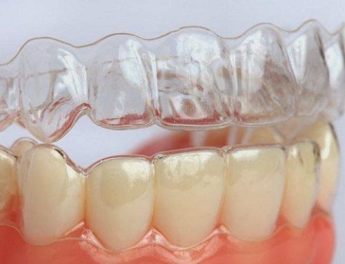 Bác sỹ cho em ý kiến đó là nên niềng răng hay bọc răng sứ