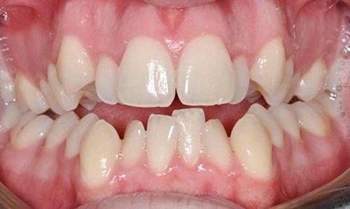 Cách xử lý răng không đều như thế nào hiệu quả?