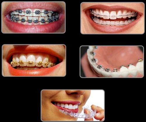 Đeo niềng răng muốn hiệu quả cần lưu ý những điểm sau?