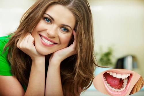 Nha khoa Lê Hưng tư vấn: 30 tuổi có niềng răng được không?
