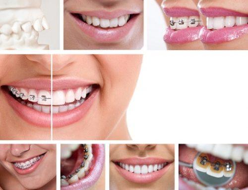 Bao nhiêu tuổi thì được niềng răng và các phương pháp thích hợp?