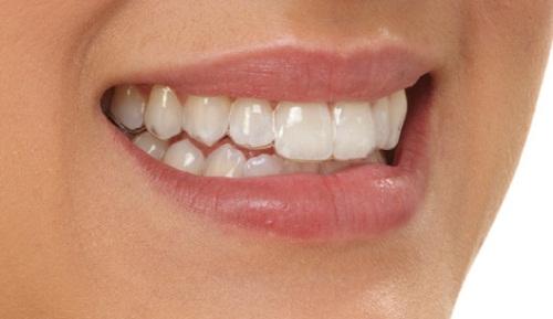 Tổng hợp ưu và nhược điểm của các phương pháp niềng răng