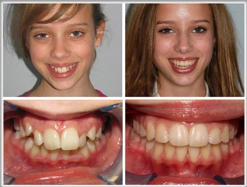 Chỉnh hình răng hô một lần duy nhất với phương pháp niềng răng