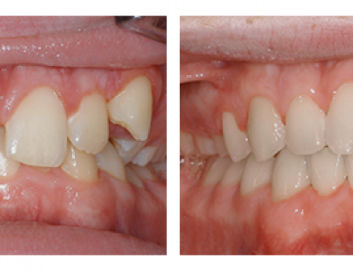 Chỉnh răng mọc lệch giá bao nhiêu tại Nha khoa Lê Hưng?