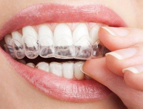 Gía niềng răng ivisalign bao nhiêu là chuẩn nhất tại Hà Nội?