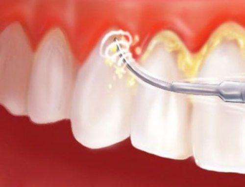 Gía tiền lấy cao răng bao nhiêu để đảm bảo chất lượng?