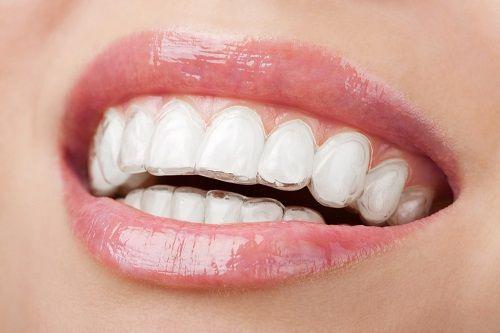 Những vấn đề cần lưu ý khi chỉnh răng không cần niềng?