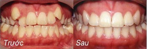 Các câu hỏi được nhiều người quan tâm khi niềng răng khểnh